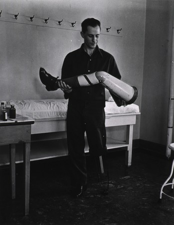 Amputee holding artificial limb