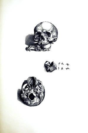 Skulls 6